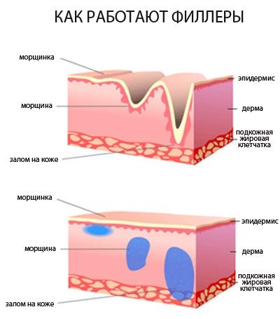Увеличение губ гиалуроновой кислотой, филлерами, ботоксом, силиконом, контурная пластика. Фото, цена, отзывы