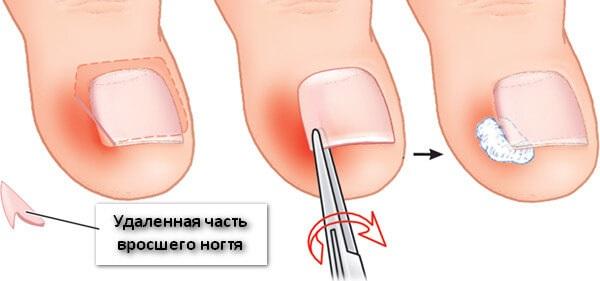 Вросший ноготь на большом пальце ноги. Причины появления, симптомы, лечение без операции народными средствами, мази, операция