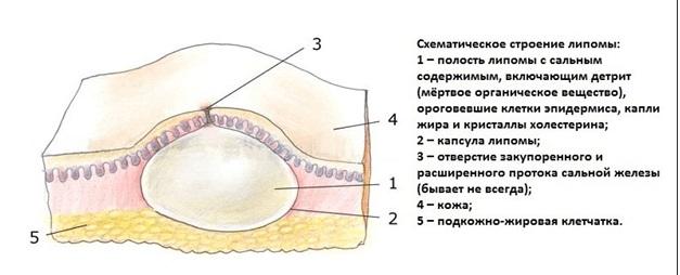 Как вылечить жировики на веке глазах thumbnail