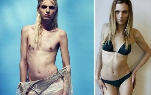 Андрей Пежич до и после операции по смене пола. Фото в молодости и сейчас, история перевоплощения