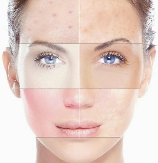 Крем Лора с гиалуроновой кислотой, пептидами для лица. Эффективность, отзывы косметологов