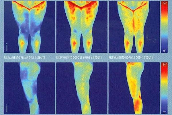 Эндосфера терапия - что это, отзывы о массаже, результаты, цена. Аппараты коррекции от целлюлита