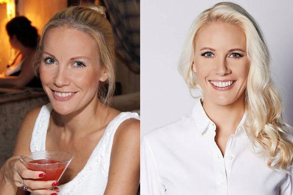 Фото до и после пластики звезд российских, зарубежных, Голливуда, шоу-бизнеса, эстрады. Удачные и неудачные операции