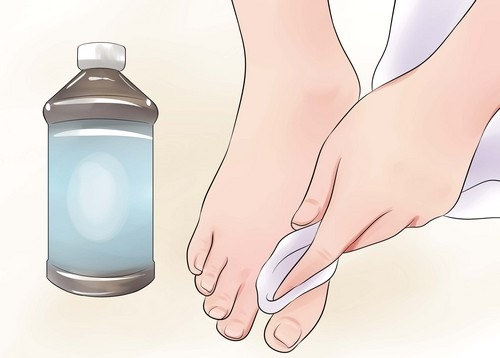 Как избавиться от запаха ног эффективно. Лучшие средства в аптеках, причины и лечение потливости