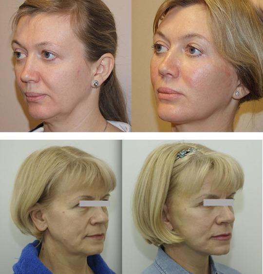 Как убрать брыли на лице, восстановить овал: упражнения, процедуры в косметологии, гимнастика, подтяжка