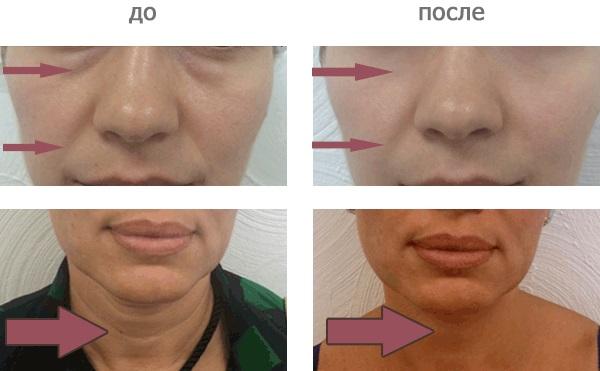 Карбокситерапия - что это такое для лица в косметологии: безинъекционная, неинвазивная, инъекционная. Фото до и после, цена, отзывы