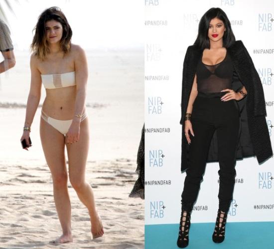 Кайли Дженнер до и после пластики: фото без макияжа, фотошопа, в купальнике, беременная. Сколько лет, рост, параметры, биография