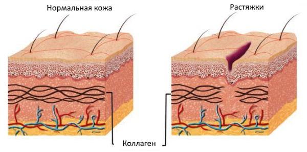 Крем Зорька. Инструкция по применению для людей от трещин на пятках, при варикозе, псориазе, пяточной шпоре, дерматите, экземе, геморрое