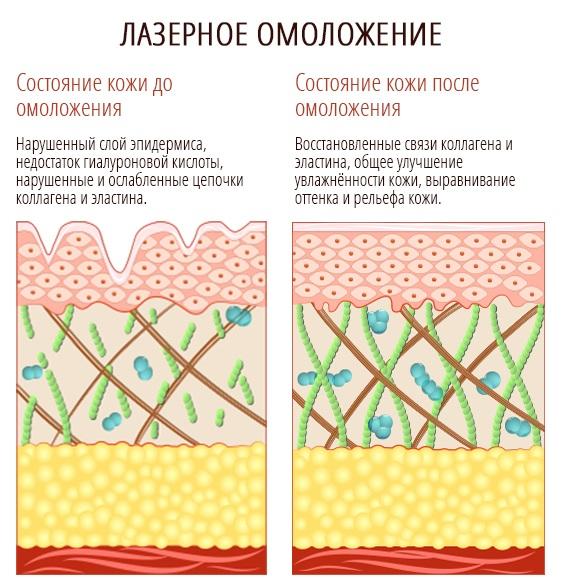 Лазерная наноперфорация лица, растяжек, рубцов, постакне. Отзывы врачей, противопоказания, последствия