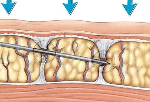 Липофилинг грудных желез. Отзывы пациентов, хирургов, цена увеличения, фото до и после