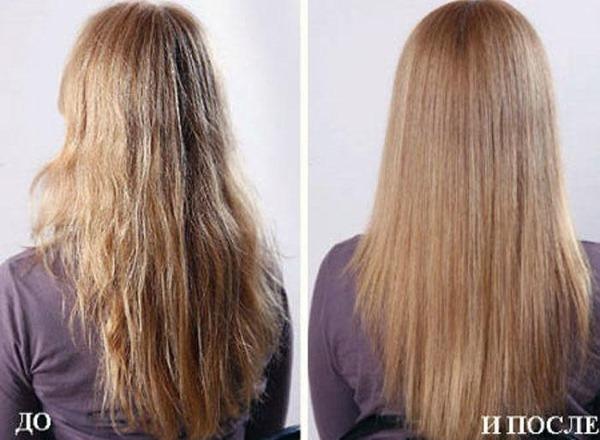 Масло чайного дерева для волос от перхоти, выпадения, вшей. Польза применения в шампунь