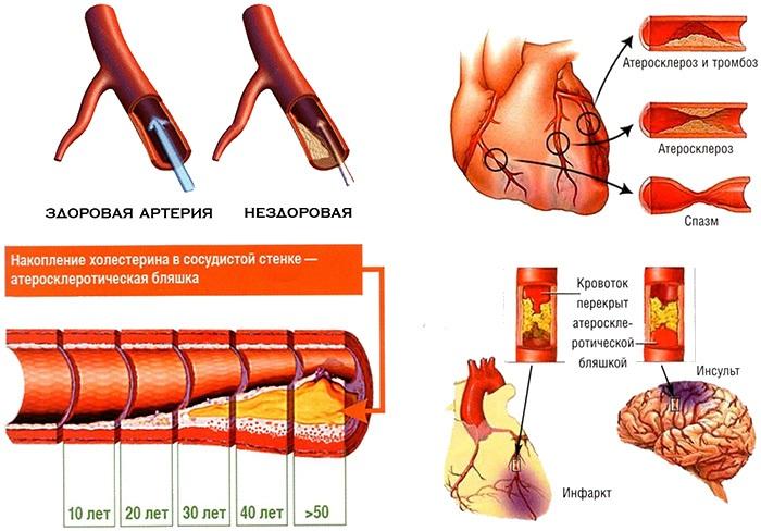 Мышцы спины: упражнения для укрепления в домашних условиях, тренажерном зале, при остеохондрозе, сколиозе
