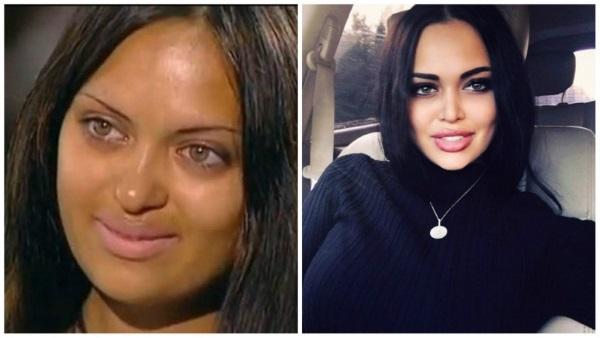 Нита Кузьмина до и после пластики. Фото, какие операции делала звезда, биография