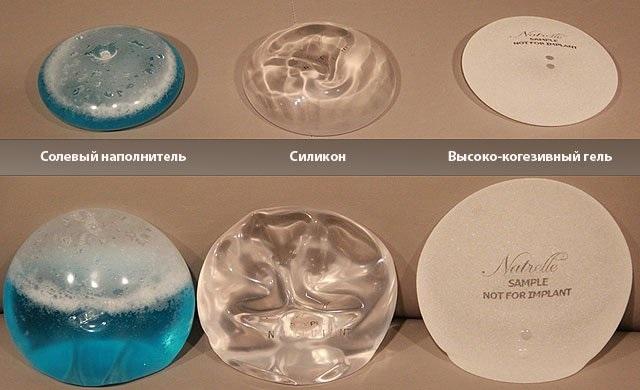 Операция маммопластика: редукционная, аугментационная, лазерная эндоскопическая, без имплантов, маскулинизирующая. Этапы, реабилитация и осложнения