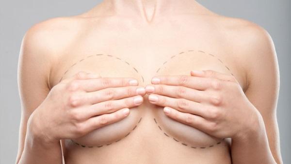 Маммопластика – что это за операция? Обзор методов (2019)