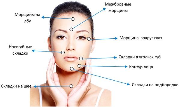 Тредлифтинг мезонитями 3D для лица, губ, лба, живота. Фото до и после, отзывы, цена процедуры