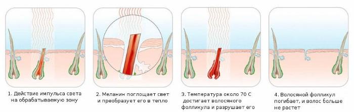AFT эпиляция - лазерное удаление волос на лице и теле, зоне бикини в салоне и домашних условиях. Аппараты, отзывы и цены