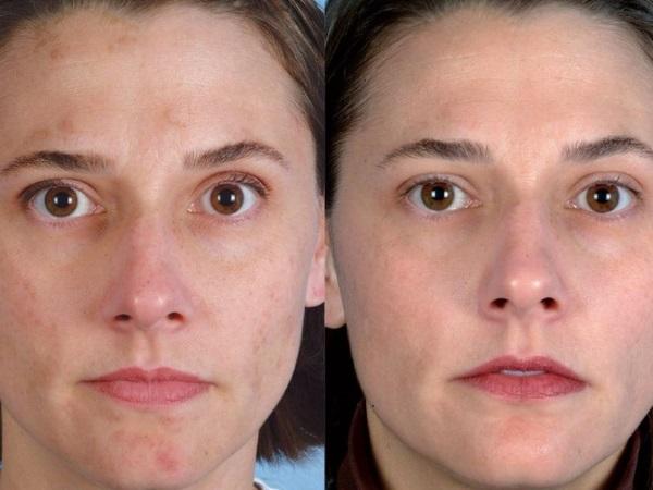 Алмазная микродермабразия лица - что это такое, аппараты, крема для энзимного микропилинга. Цена процедуры