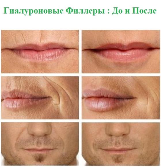 Филлеры в носогубные складки, под глаза, в губы, в скулы. Коррекция носа, носослезной борозды. Контурная пластика лица