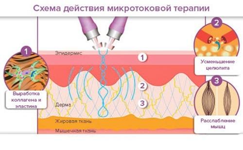 Как убрать морщины на лбу, под глазами, носогубные, над верхней губой, между бровями, на шее, межбровную, мимические