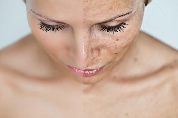 Лазерное фракционное омоложение лица, кожи тела. Clear Brilliant, США. Плюсы и минусы, отзывы