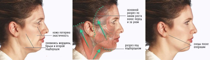 Лифтинг лица: что это такое, SMAS, RF, плазма, массаж, ультразвуковой, нитевой, эндоскопический, радиоволновой, векторный, радиочастотный, лазерный, акупунктурный