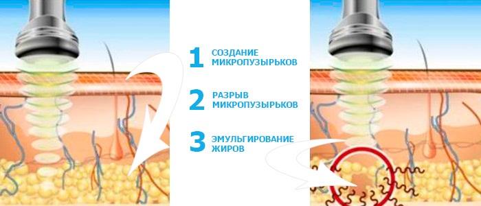 Липолитики для лица, подбородка, носа. Результаты применения, цены, побочные эффекты уколов мезотерапии