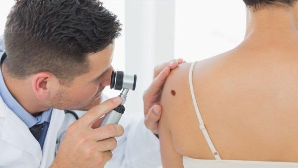 Как избавиться от папиллом на теле народными, медикаментозными средствами, хирургическими методами