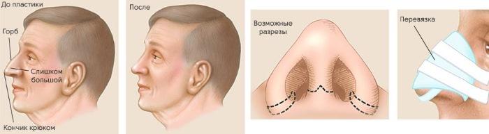 Пластическая операция на нос. Виды, цены: коррекция перегородки, уменьшение носа, убрать горбинку, изменить форму, контурная ринопластика