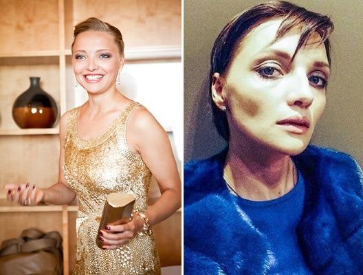 Фото женщин до и после похудения: Гагарина, Чехова, Картункова, Каменских, Африкантова, Белоцерковская и другие звёзды