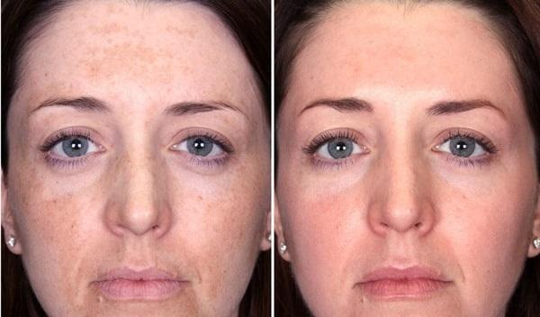 Прыщи на подбородке у женщин на лице. Причины появления после 30 лет, во время беременности. Какой орган не в порядке, препараты для лечения дома