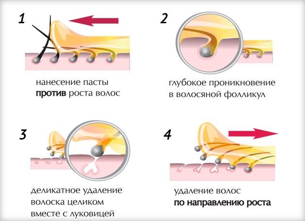 Вросшие волосы в зоне бикини: как избавиться в домашних условиях. Как убрать, если воспалился, стал шишкой, после депиляции, шугаринга