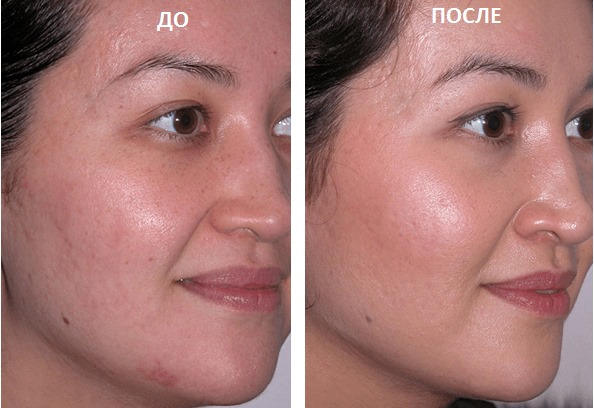 Уход за жирной кожей лица: ежедневный, летний, зимний. Особенности применения косметических профессиональных и народных средств