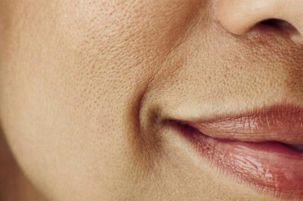Как сузить расширенные поры на лице масками, крема, тоник, средства из аптеки, вакуумный очиститель. Уход за кожей