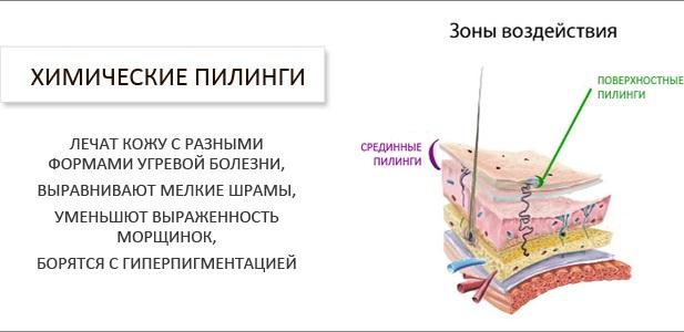 Как убрать растяжки на попе, бедрах, животе у женщин после родов, во время беременности. Крема, массаж, упражнения, народные средства