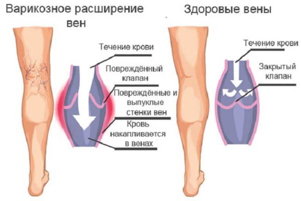 Лазерная липосакция. Что это, как проводится для живота, подбородка, лица, бедер, щек, ног, ягодиц, рук, вдовий горб. Фото до и после, отзывы, цена процедуры