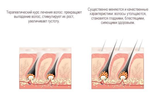 Маски для роста волос и от выпадения с Димексидом и витаминами, облепиховым, репейным маслом. Рецепты