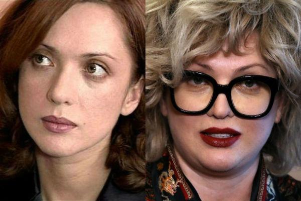 Ольга Дроздова до и после пластики. Фото в молодости, как выглядит сейчас, как изменилась
