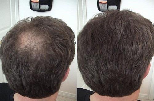 Плазмотерапия для волос и кожи головы: что это, результаты, показания и противопоказания