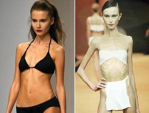 Самый худой человек в мире - женщина. Девушки анорексички, модели, знаменитости. Фото