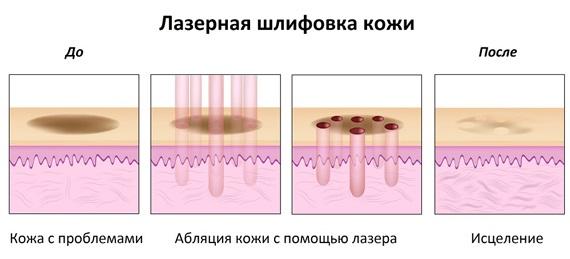 Шлифовка лица. Фото до и после лазерной, СО2, алмазной, фракционной, радиочастотной. Плюсы и минусы, этапы, реабилитация