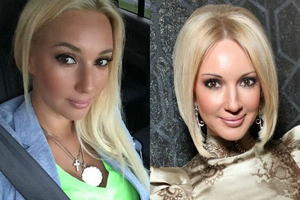 Лера Кудрявцева. Фото до и после пластики, в молодости, без макияжа, возраст, параметры фигуры. Как изменилась звезда