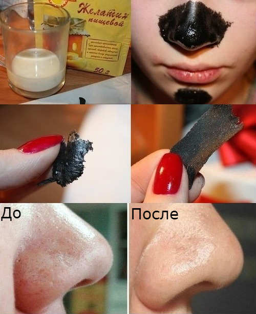 Маска для лица с активированным углем от черных точек, прыщей. Рецепты и правила применения