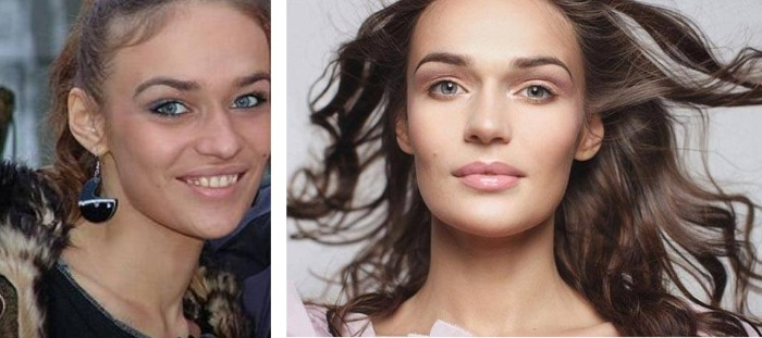 Алена Водонаева до и после пластики. Фото, параметры фигуры, рост, вес, цвет волос. Операция по уменьшению носа, что сделала с зубами