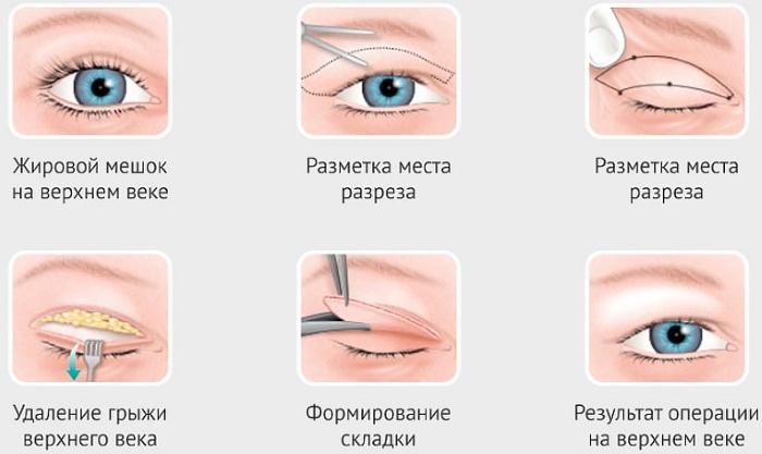 Блефаропластика в Москве. Цены 2019 года, рейтинг клиник, как выбрать хирурга, акции, скидки