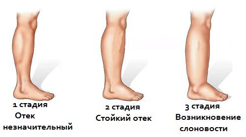 Лимфодренажный массаж ног, бедер, живота при лимфостазе, варикозе, отеках, расширении вен, беременности. Техника, как сделать самостоятельно