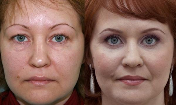 Липофилинг лица. Фото губ, век, носогубных складок, подбородка, скул, носа, под глазами, щек. Как делается, последствия
