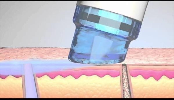 Вакуумный гидропилинг Хайдра Фешл hydrafacial. Что это за процедура, описание, аппараты, цена