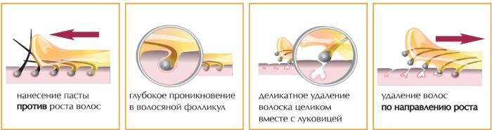 Вросшие волосы на ногах, в зоне бикини, лобке после шугаринга, эпиляции. Средства лечения: мази, лосьоны, крема, скрабы, бадяга, Бепантен, Левомеколь