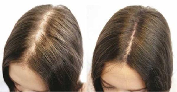 Мезотерапия кожи головы волосистой части. Что это такое, эффект, цена. Как сделать в домашних условиях